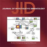 Distinct Patterns of Acral Melanoma Based on Site and Relative Sun Exposure